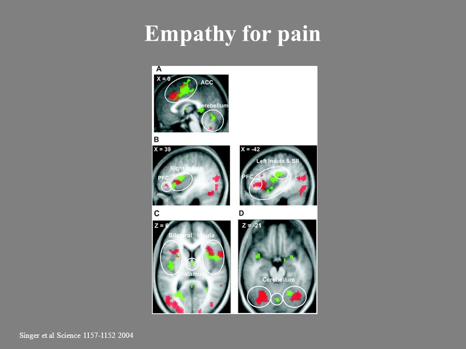 Empathy for pain Singer et al Science 1157-1152 2004
