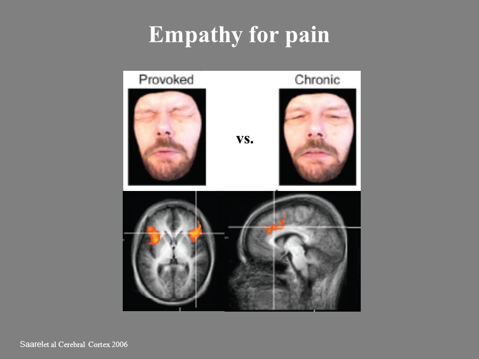 Empathy for pain vs. Saarelet al Cerebral Cortex 2006
