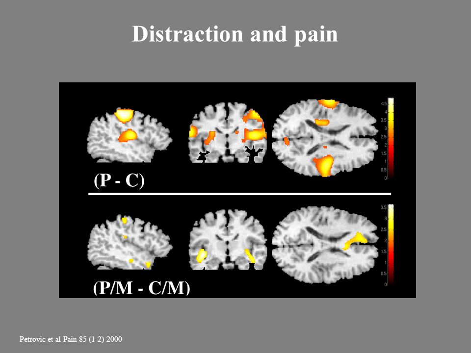 Distraction and pain • So which were the neural correlates for these behavioural findings