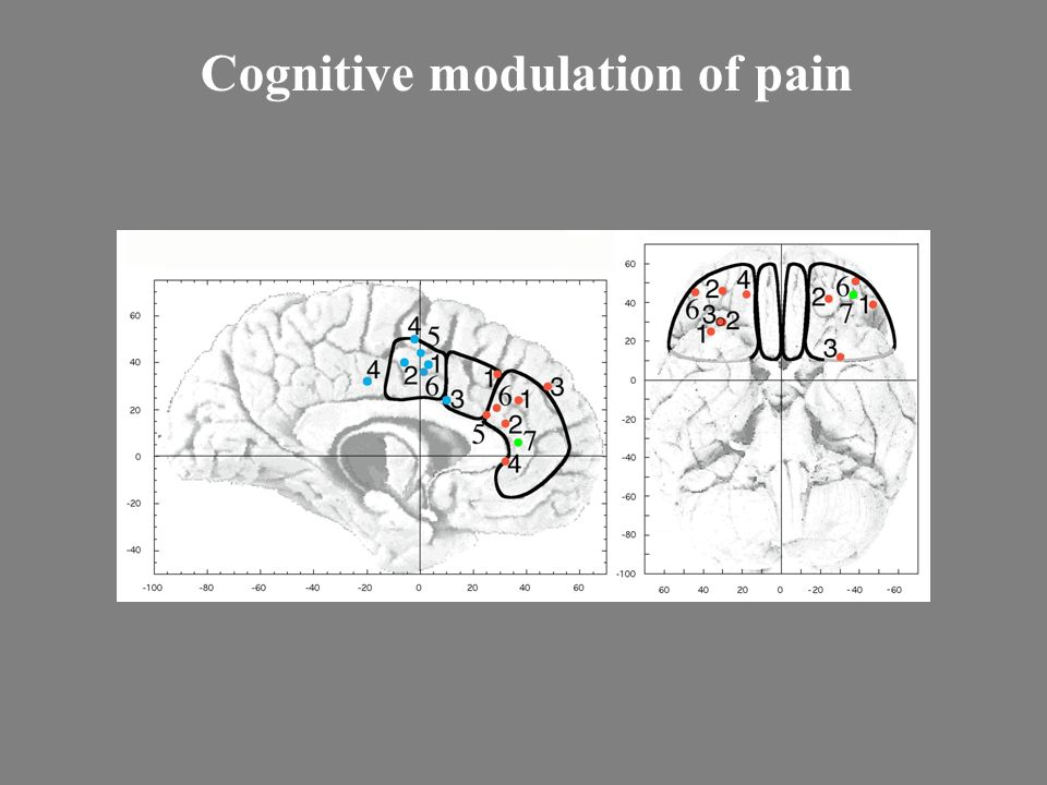Cognitive modulation of pain