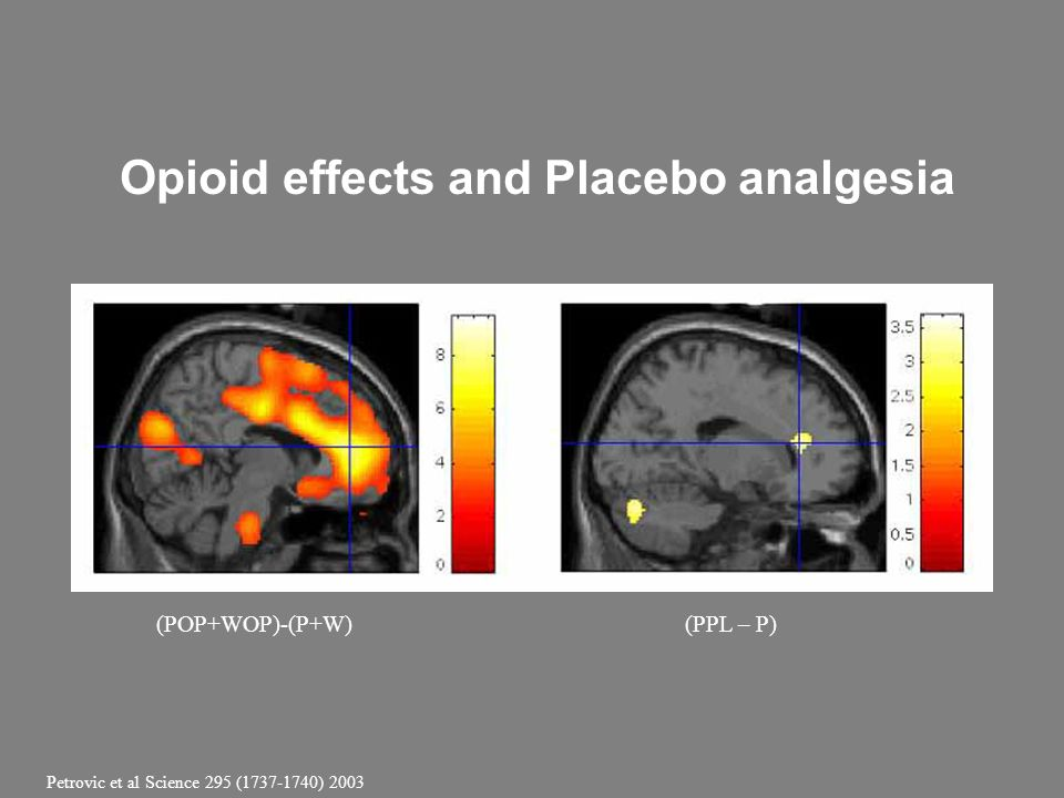 Opioid effects and Placebo analgesia