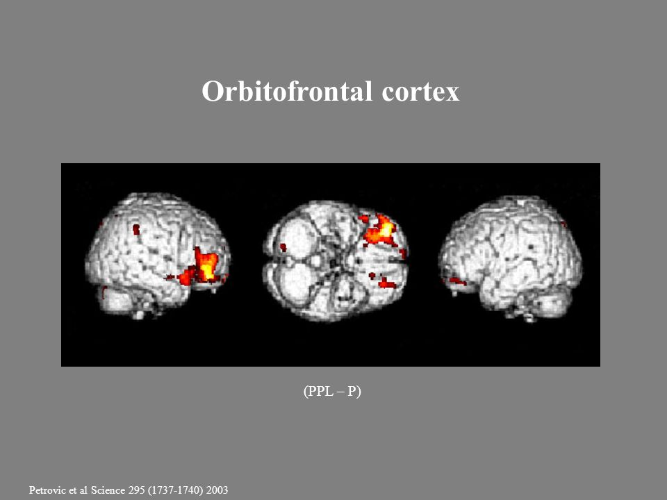 Orbitofrontal cortex (PPL – P)