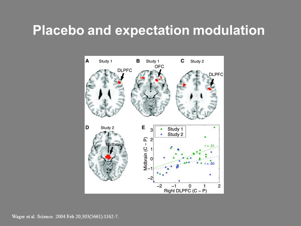 Placebo and expectation modulation