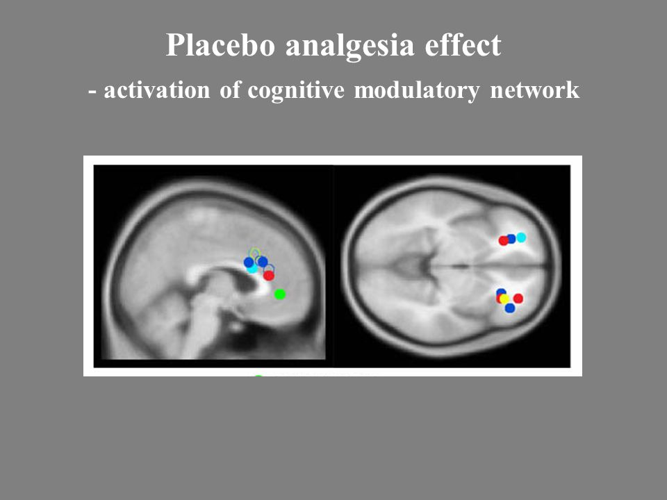 Placebo analgesia effect - activation of cognitive modulatory network