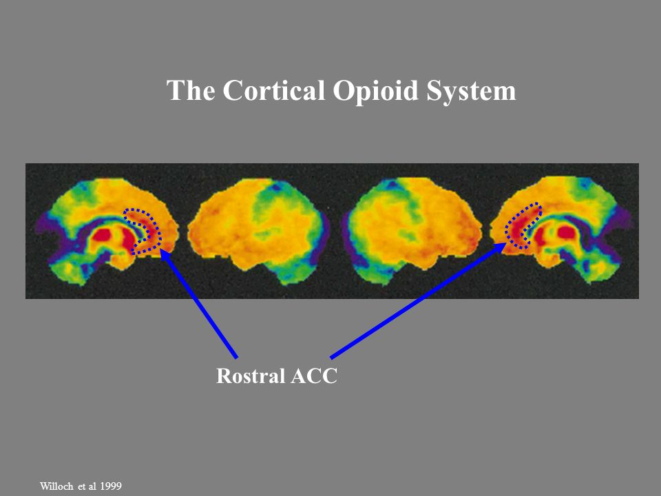 The Cortical Opioid System