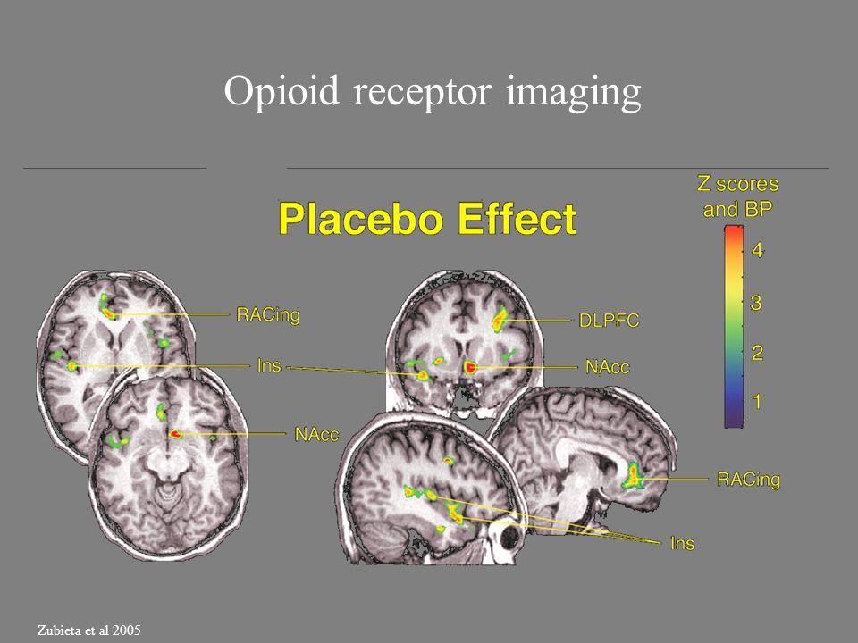 Opioid receptor imaging