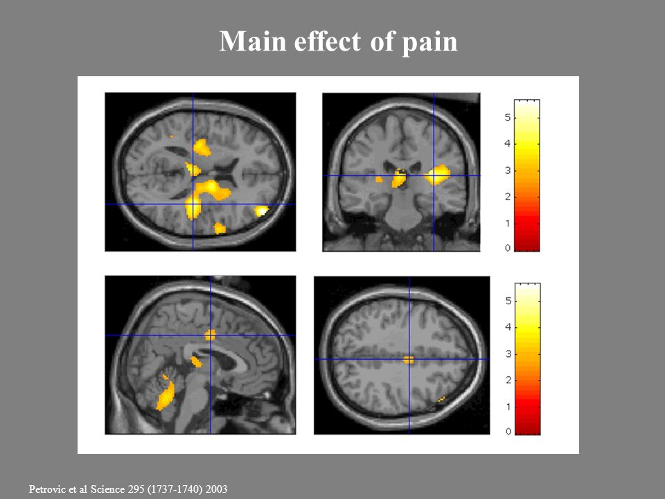 Main effect of pain Petrovic et al Science 295 (1737-1740) 2003