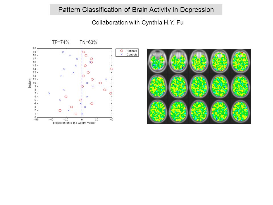 Pattern Classification of Brain Activity in Depression