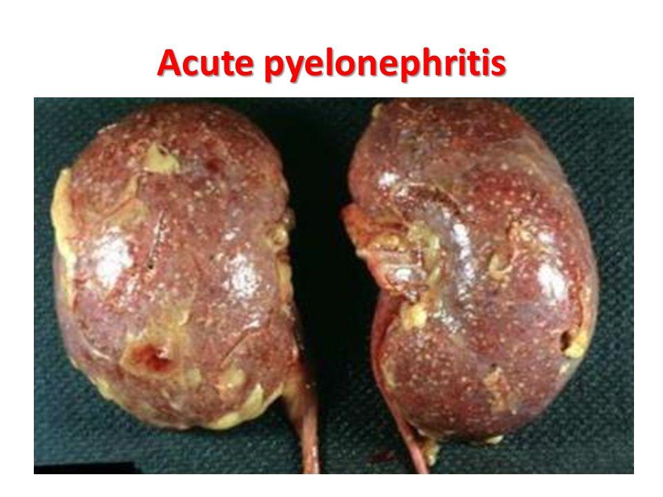 u.t.i cystitis & pyelonephritis - ppt download, Skeleton