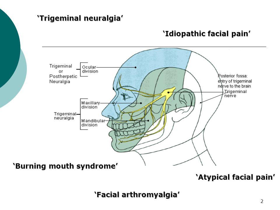 'Trigeminal neuralgia'