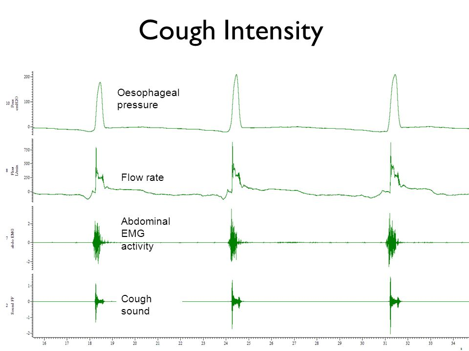 Cough Intensity Oesophageal pressure Flow rate Abdominal EMG activity