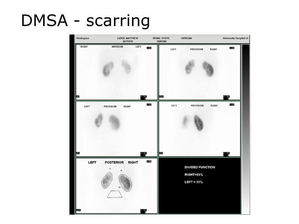 DMSA - scarring