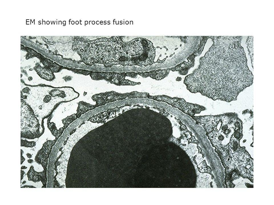 EM showing foot process fusion