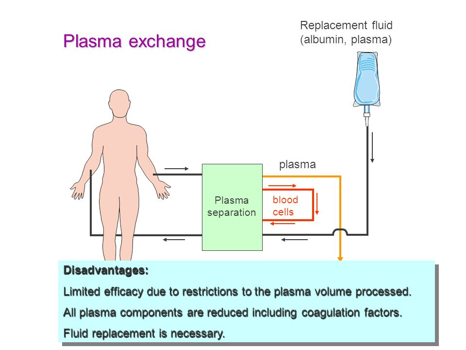 Plasma exchange Replacement fluid (albumin, plasma) plasma