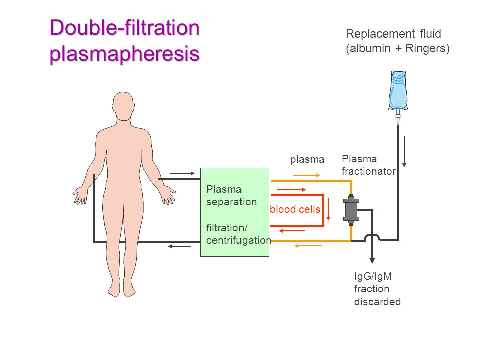 Double-filtration plasmapheresis