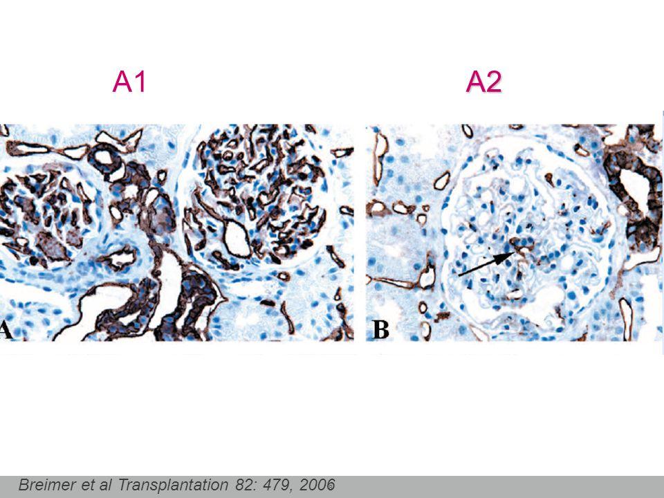 A1 A2 Breimer et al Transplantation 82: 479, 2006