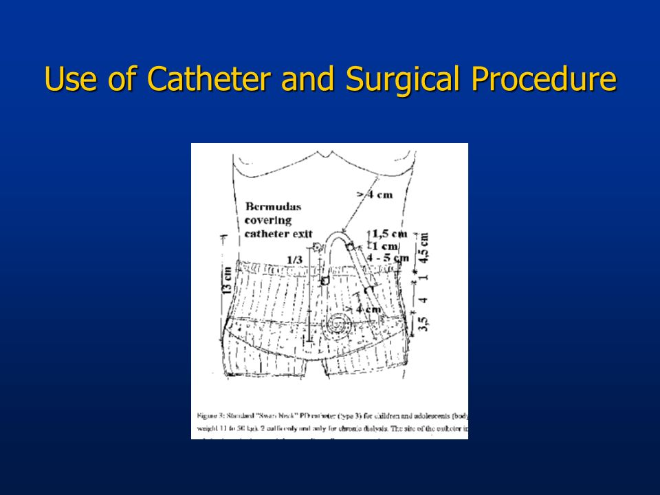 Use of Catheter and Surgical Procedure