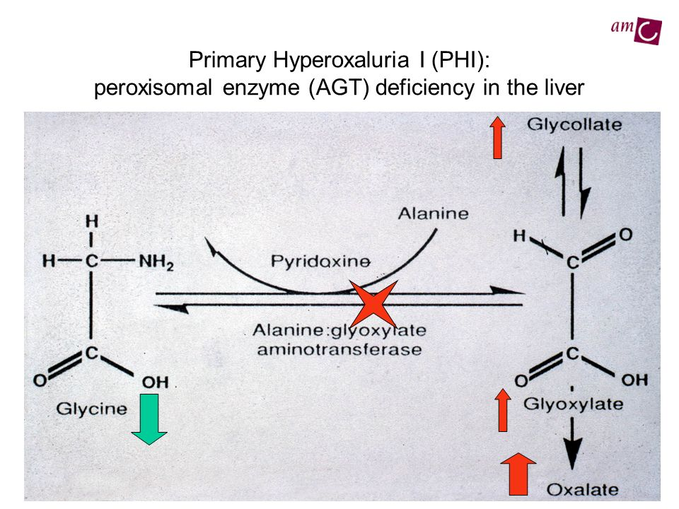 Primary Hyperoxaluria I (PHI): peroxisomal enzyme (AGT) deficiency in the liver
