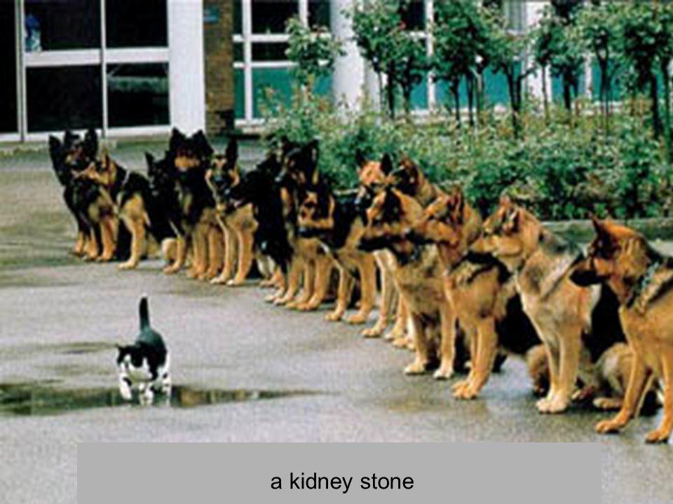 a kidney stone