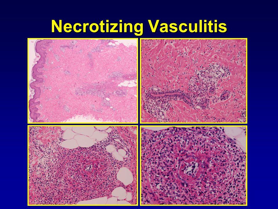 Necrotizing Vasculitis