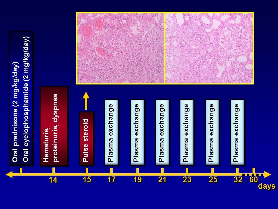 14 15 17 19 21 23 25 32 60 days Oral cyclophosphamide (2 mg/kg/day)