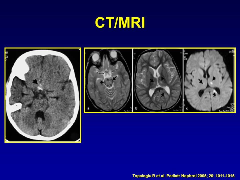 CT/MRI Topaloglu R et al. Pediatr Nephrol 2005; 20: 1011-1015.
