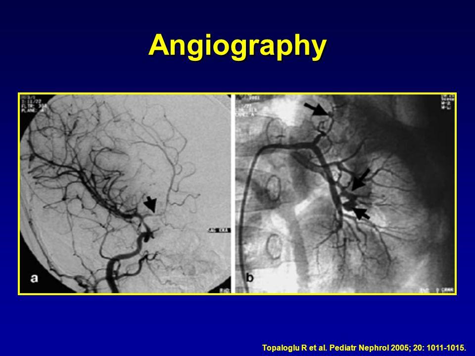 Angiography Topaloglu R et al. Pediatr Nephrol 2005; 20: 1011-1015.