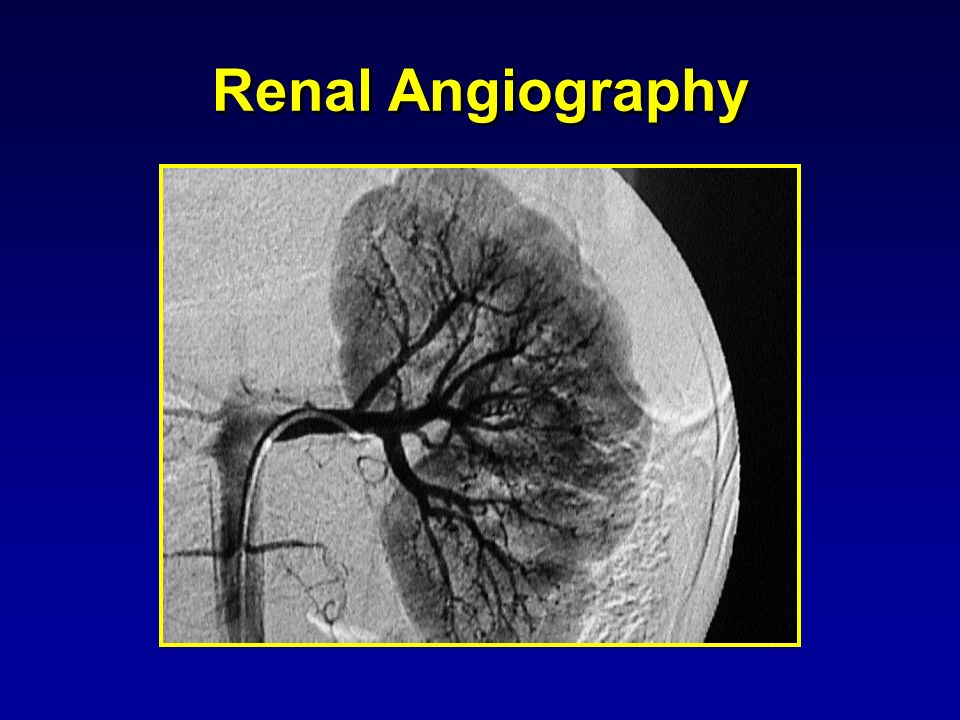 Renal Angiography