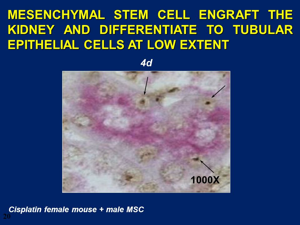 28/03/2017 MESENCHYMAL STEM CELL ENGRAFT THE KIDNEY AND DIFFERENTIATE TO TUBULAR EPITHELIAL CELLS AT LOW EXTENT.