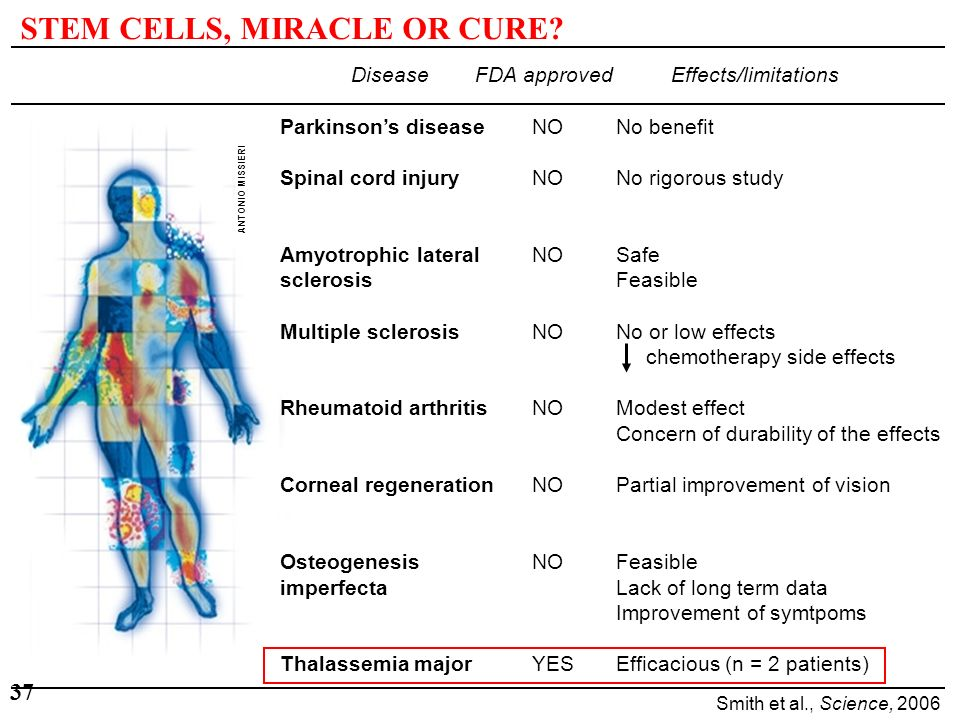 STEM CELLS, MIRACLE OR CURE