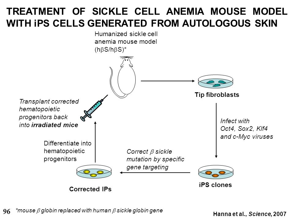 28/03/2017 TREATMENT OF SICKLE CELL ANEMIA MOUSE MODEL WITH iPS CELLS GENERATED FROM AUTOLOGOUS SKIN.