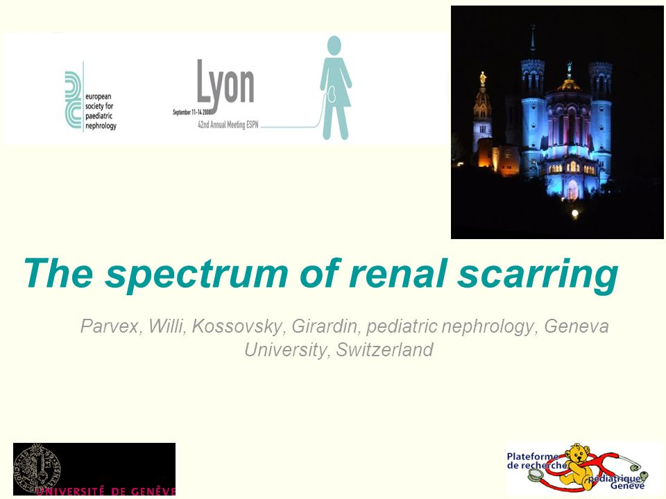 The spectrum of renal scarring