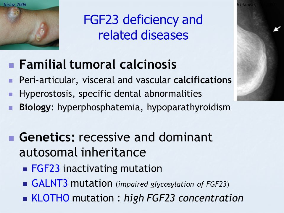 FGF23 deficiency and related diseases