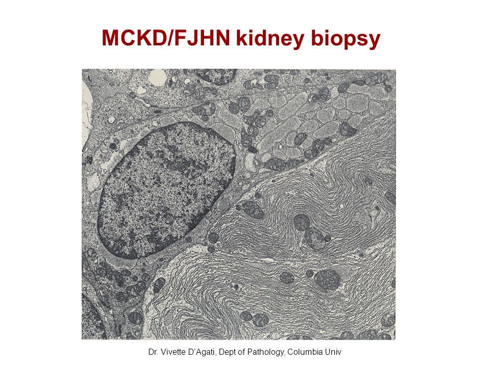 MCKD/FJHN kidney biopsy