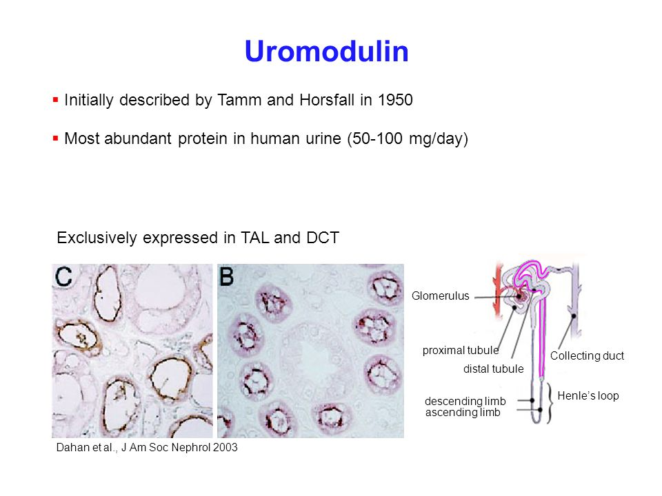 Uromodulin Initially described by Tamm and Horsfall in 1950