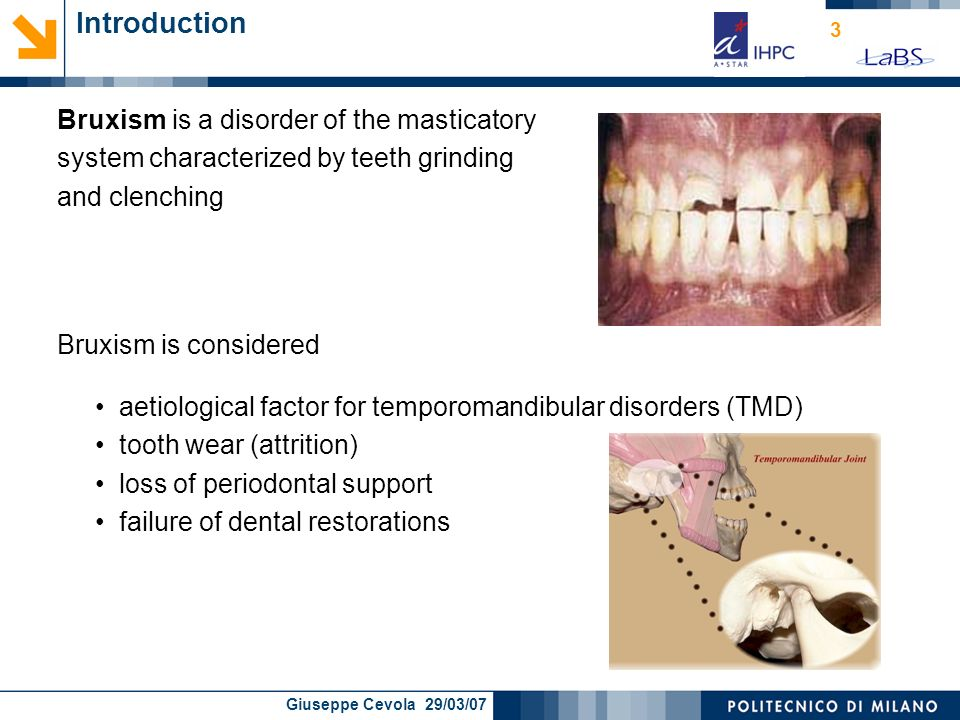 Introduction Bruxism is a disorder of the masticatory