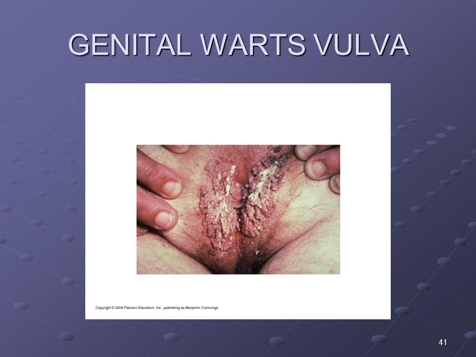 GENITAL WARTS VULVA