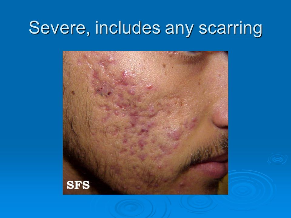 Severe, includes any scarring