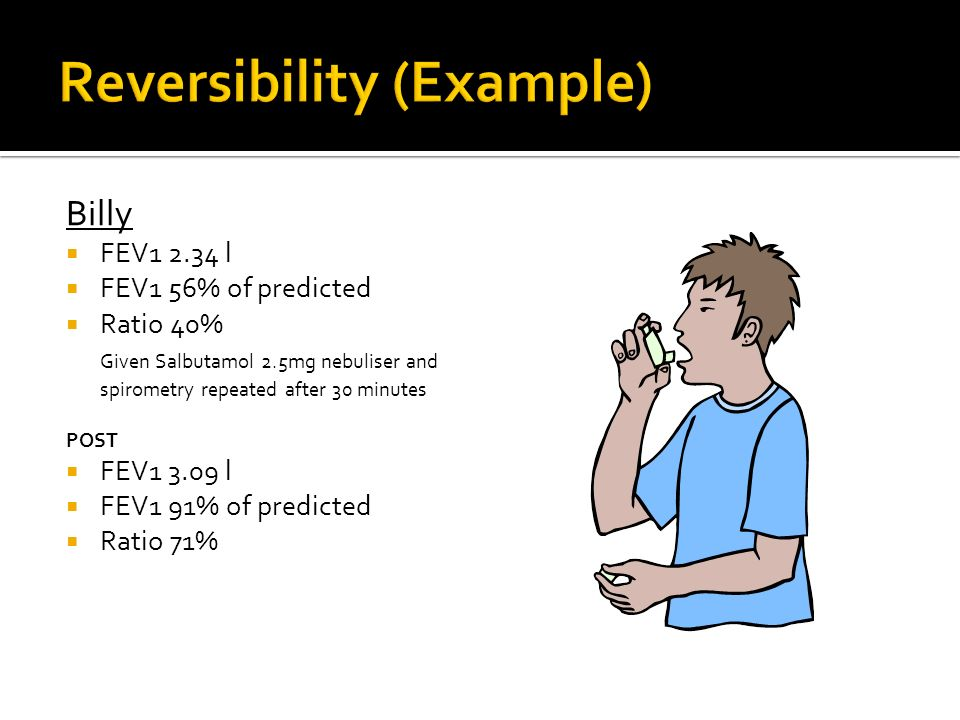 Reversibility (Example)