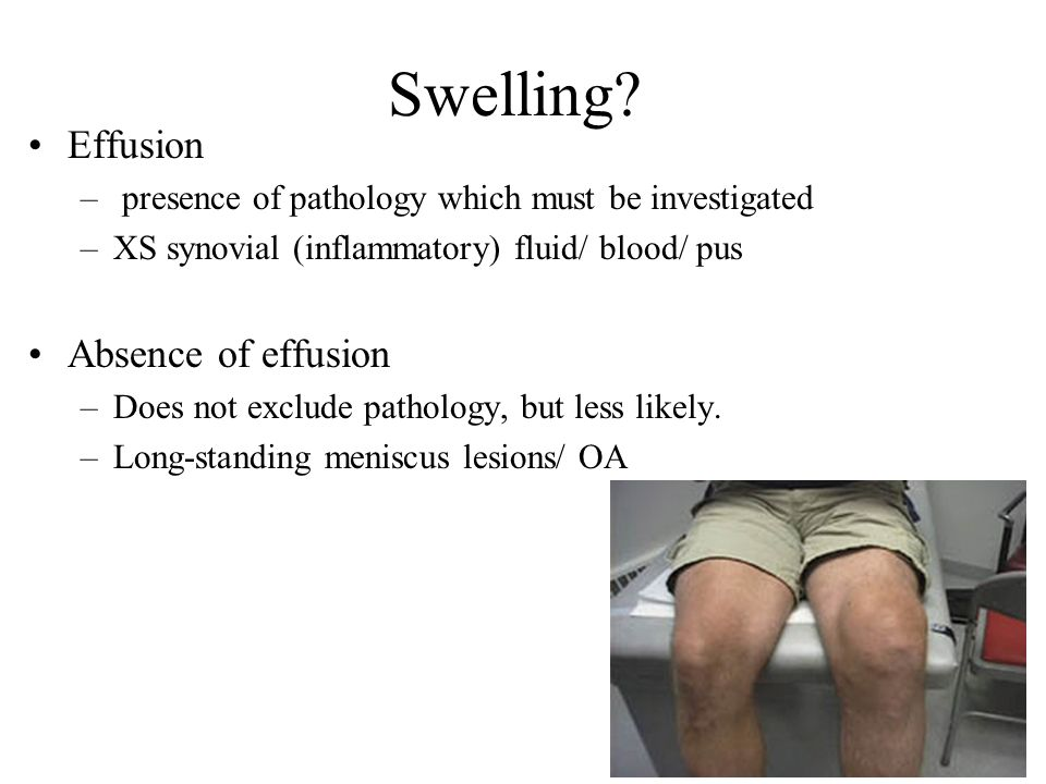 Swelling Effusion Absence of effusion
