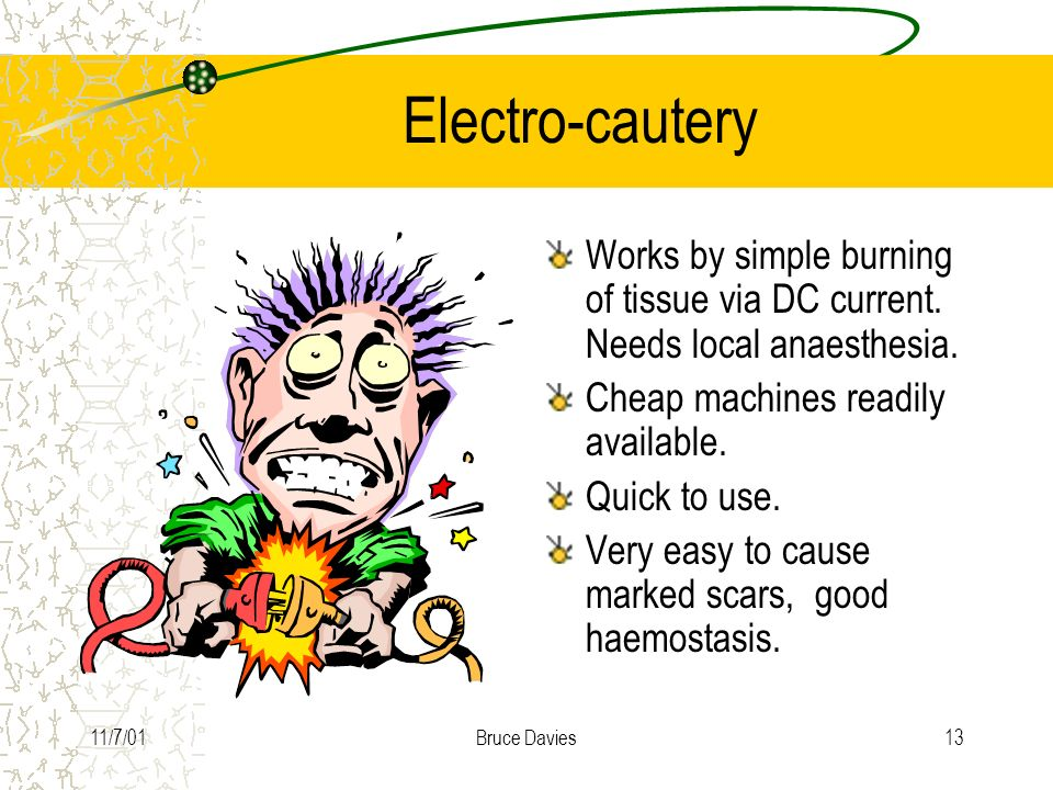 Electro-cautery Works by simple burning of tissue via DC current. Needs local anaesthesia. Cheap machines readily available.