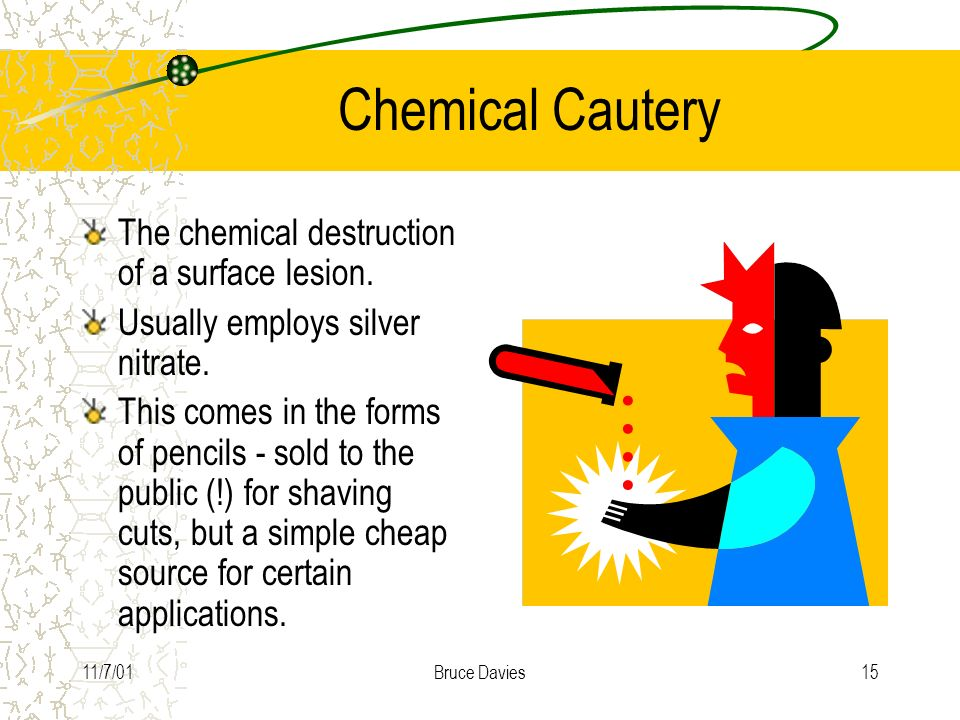 Chemical Cautery The chemical destruction of a surface lesion.