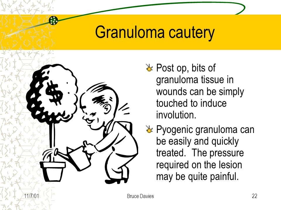 Granuloma cautery Post op, bits of granuloma tissue in wounds can be simply touched to induce involution.