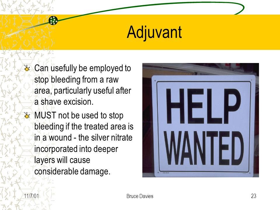 Adjuvant Can usefully be employed to stop bleeding from a raw area, particularly useful after a shave excision.