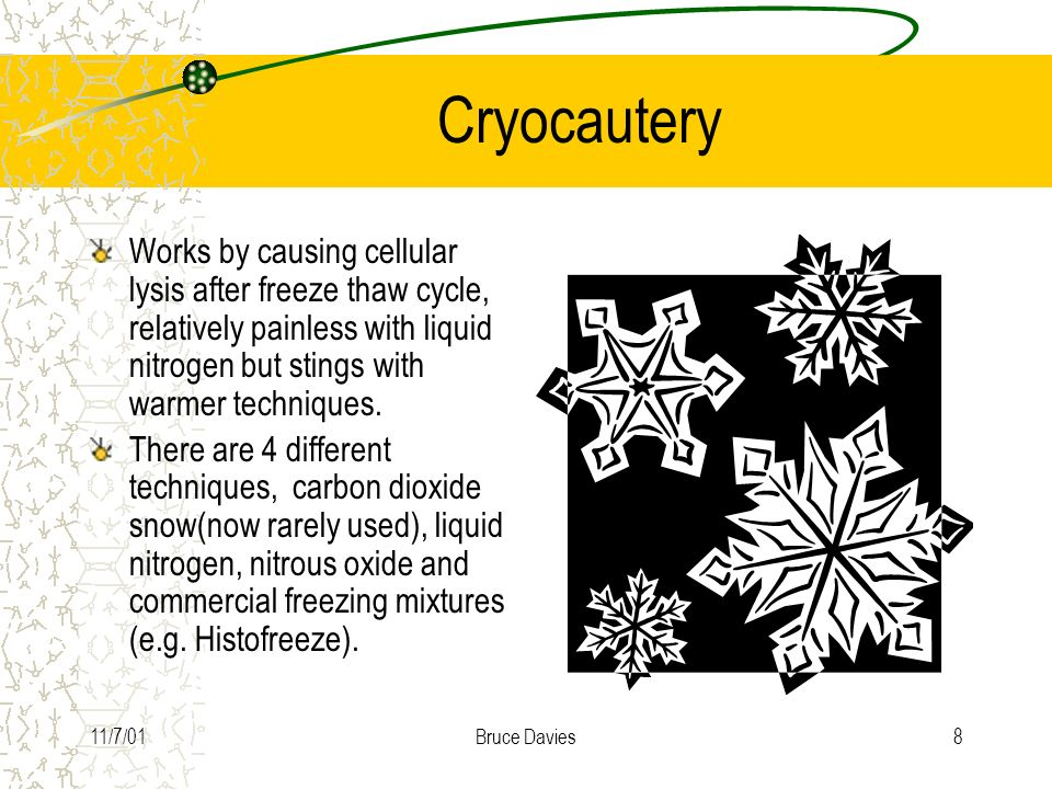 Cryocautery Works by causing cellular lysis after freeze thaw cycle, relatively painless with liquid nitrogen but stings with warmer techniques.