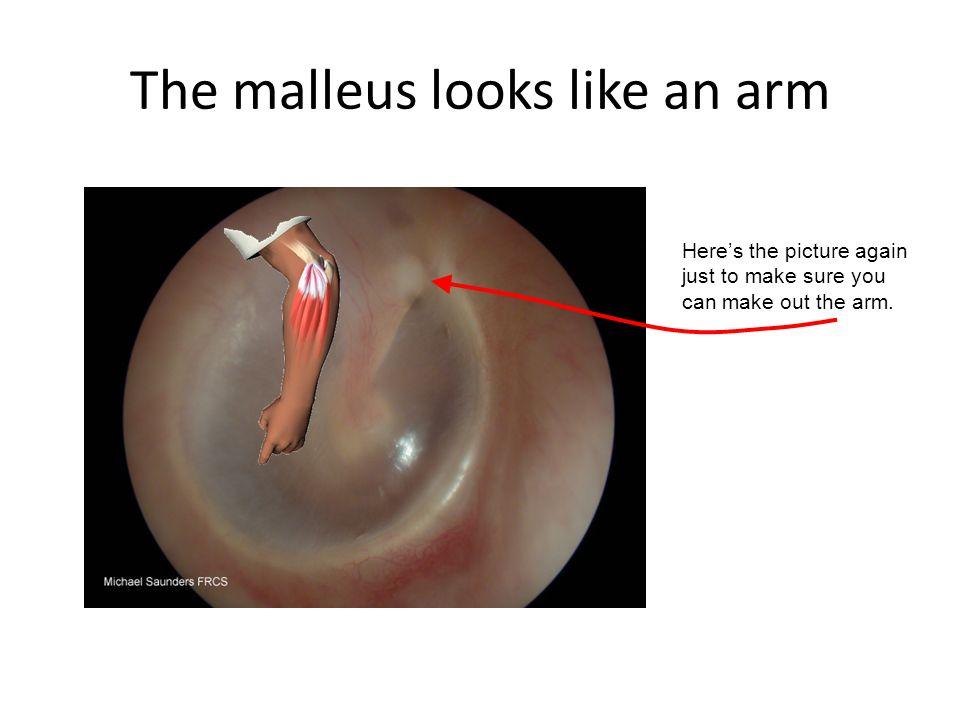 The malleus looks like an arm