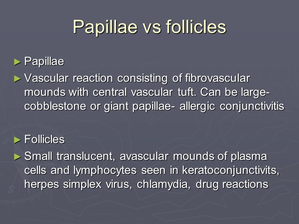 Papillae vs follicles Papillae