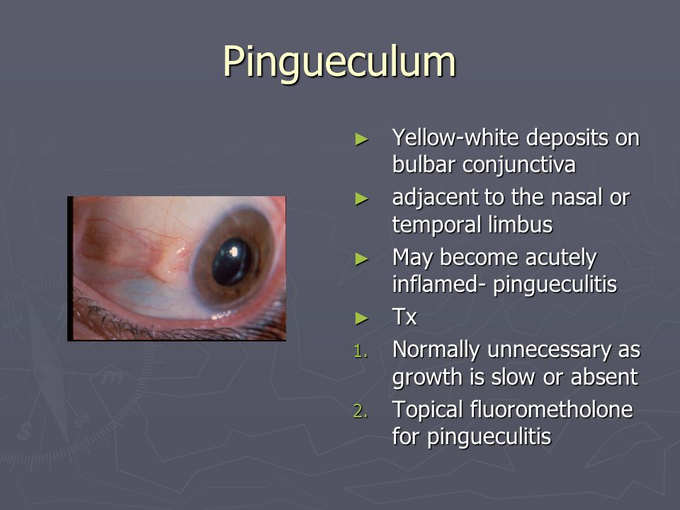 Pingueculum Yellow-white deposits on bulbar conjunctiva