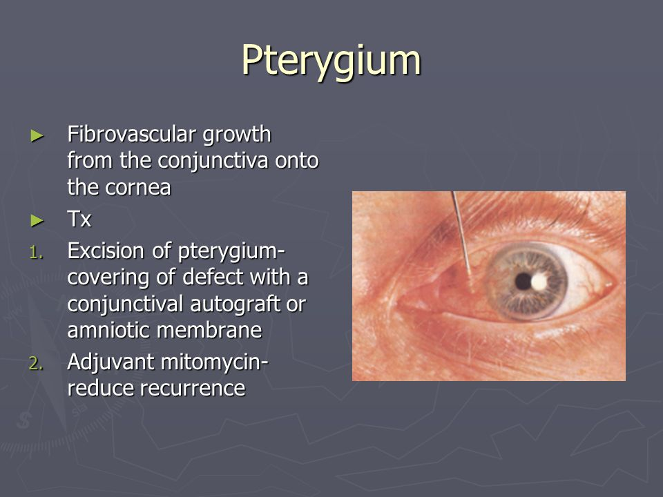 Pterygium Fibrovascular growth from the conjunctiva onto the cornea Tx