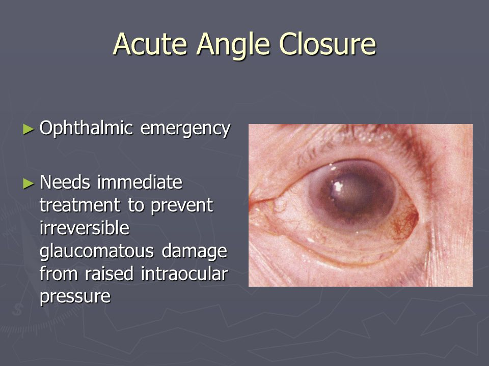 Acute Angle Closure Ophthalmic emergency